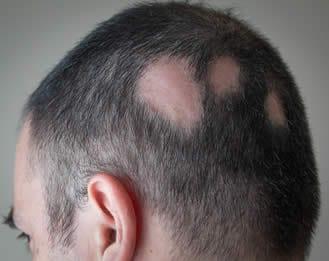 quale malattia è la caduta improvvisa dei capelli