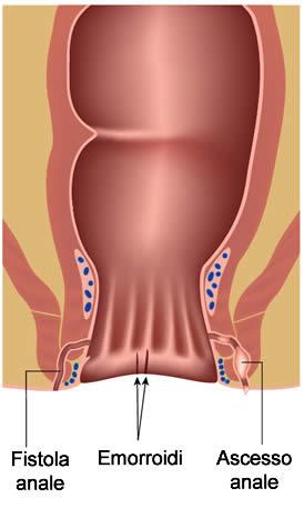 dolore tra lo scroto e lano