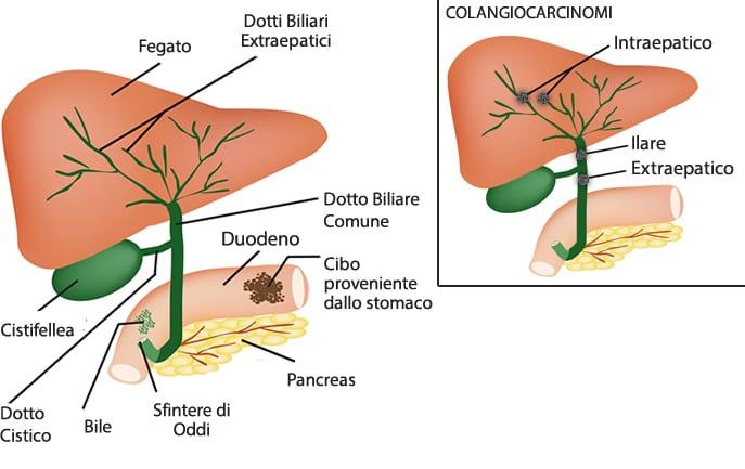 rapida perdita di peso e malattia della cistifelleau