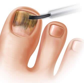 Micosi delle Unghie - Onicomicosi