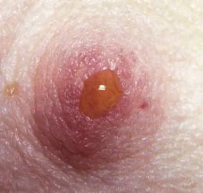 Papilloma intraduttale tumore - Papilloma intraduttale mammario