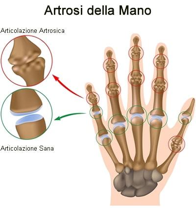 L'uso del computer fa venire l'artrosi alle mani?