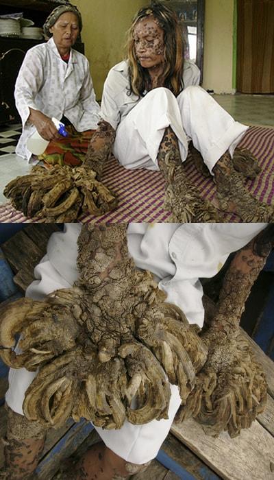 papilloma virus uomo albero)