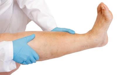 minzione frequente dolori muscolari articolari pelle arrossata pelle dolorosa