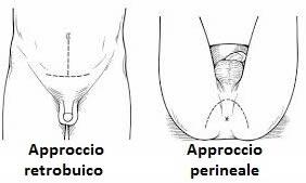 operazione di rimozione dei linfonodi attorno alla prostata