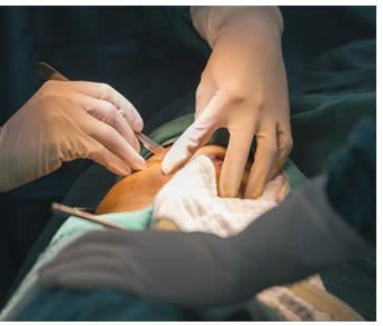 biopsia dopo chirurgia prostatica