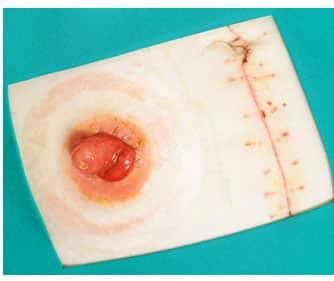 dieta dopo loperazione di cancro al colon