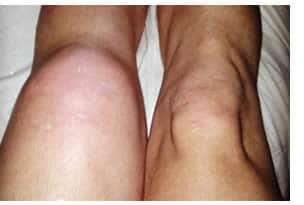 Dolore al Ginocchio: sintomi, cause e prevenzione