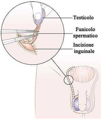 quanti giorni di degenza per operazione prostata