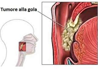 hpv gola diagnosi)