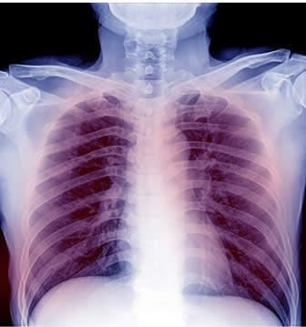 infezione cardiaca virale