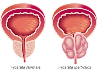 quali sono i 6 sintomi del cancro alla prostata