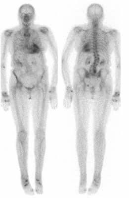 effetti collaterali a lungo termine del trattamento con radiazioni del cancro alla prostata