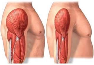 dolore laterale sinistro con infezione da parassiti