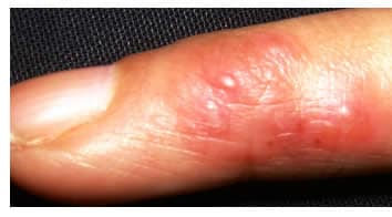 infezione di streptococco