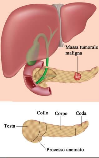 tumore prostata grado 3 de la