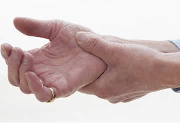 Sintomi Artrite Gottosa