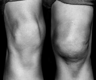 dolore allinguine e al ginocchio da l3-4
