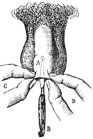 perdita di erezione durante una sega de