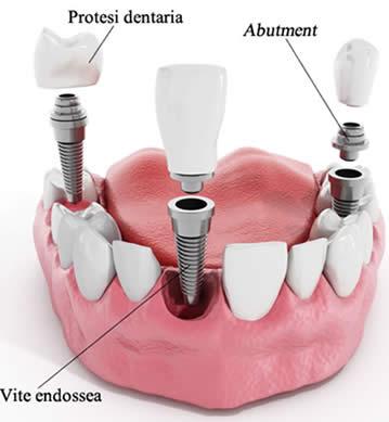 perno per impianto dentale