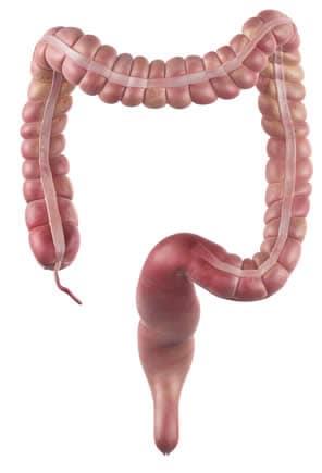 diarrea con rumori intestinali