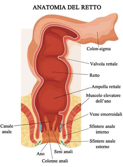 dolore pelvico cancro intestinale